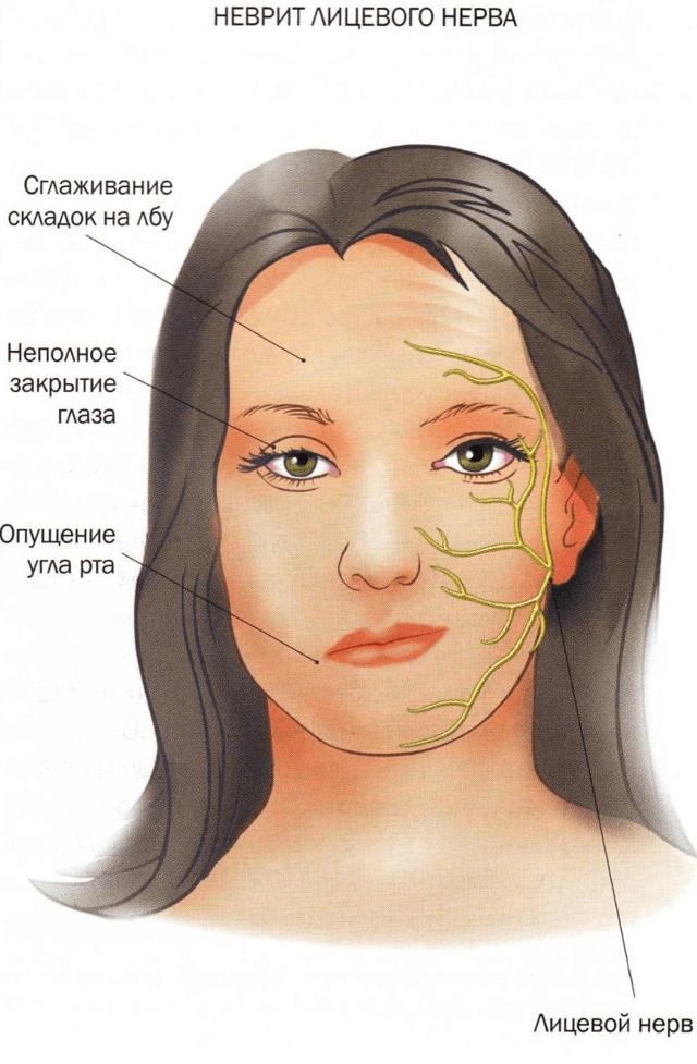 Онемела губа, потеряла чувствительность – причины и что делать