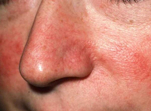 Корки или струпья на лице – фото, причины и что делать