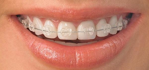 Белые пятна на зубах у ребенка или взрослого – почему и что делать?