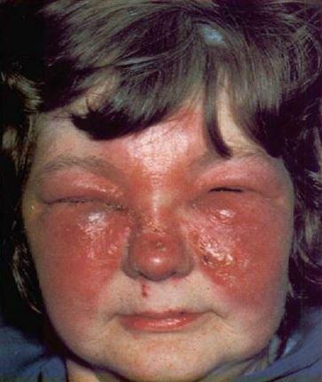 Болячки на веках – виды, причины, фото, лечение