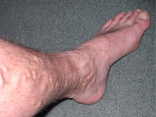 Чешутся ноги ниже колен – причины, фото, лечение