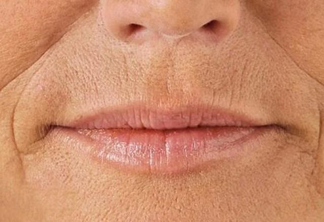 7 шагов, чтобы избавиться от морщин на губах