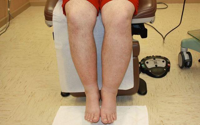Красные пятна или точки на ногах – причины, фото, лечение