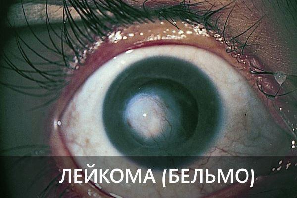 Пятна на глазном яблоке – причины, фото и что делать
