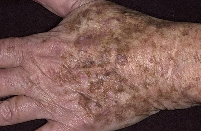 Возрастные пигментные пятна – причины и как избавиться