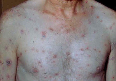 Сыпь на теле – причины, фото, пояснения, лечение