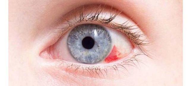 Лопнул сосуд в глазу – причины и что делать?