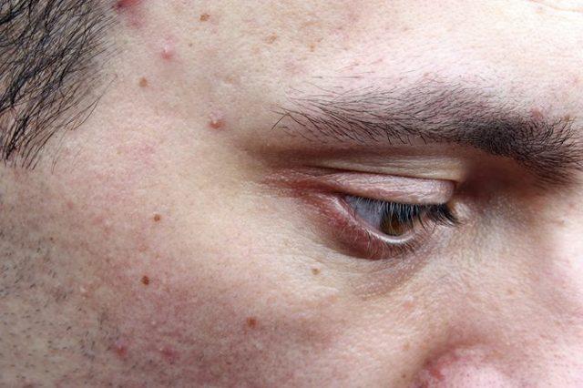 Белые прыщики на лице – причины, фото и лечение