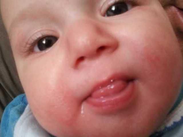Сыпь вокруг рта у взрослого и ребенка – причины, фото, лечение