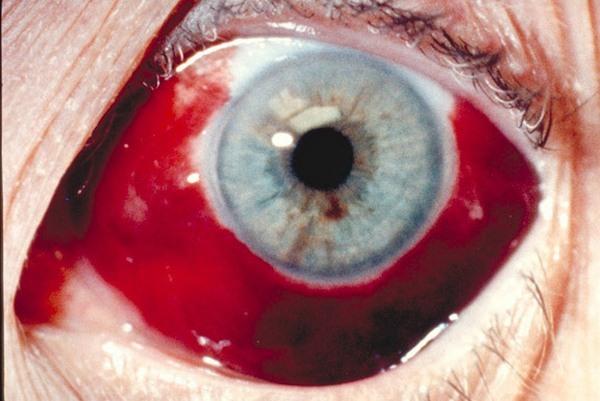 Глаз налился кровью – причины, фото, лечение