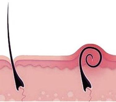 Вросший волос стал шишкой – причины и что делать?