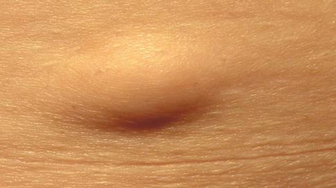 Бугорки, шишки и уплотнения на внутренней стороне бедра