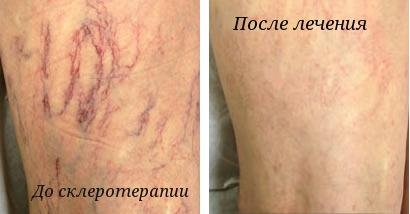 Склеротерапия вен нижних конечностей: отзывы, фото до и после, цена