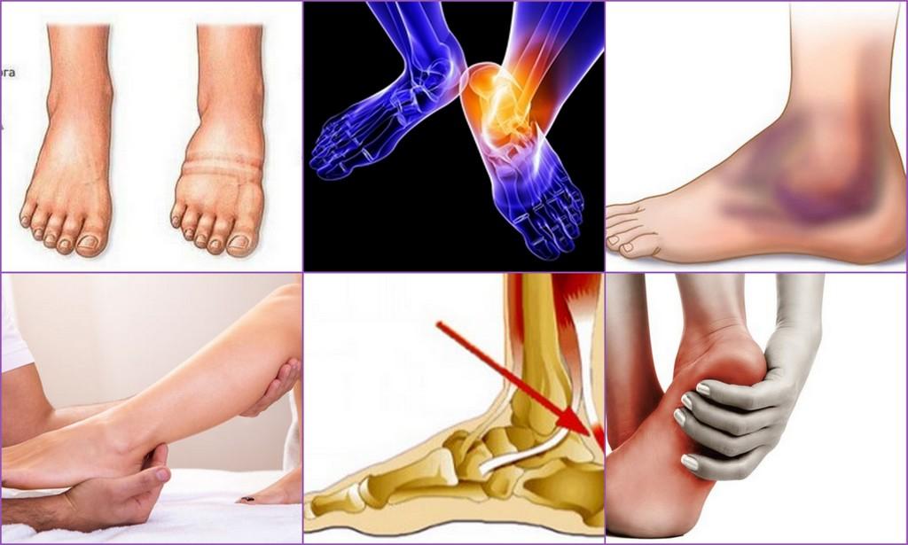 Тендинит стопы и голеностопного сустава: симптомы, лечение, фото