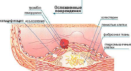 Осложнения атеросклероза - чем опасен, какие последствия