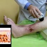 Трофическая язва на ноге при сахарном диабете - лечение, фото