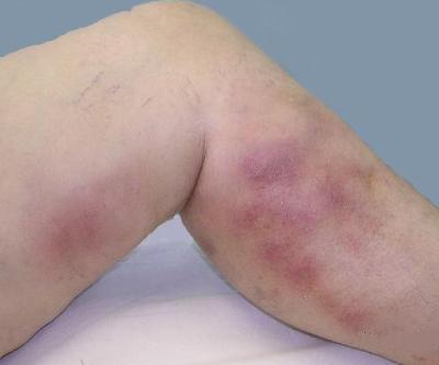 Флебит нижних конечностей: симптомы, лечение, фото