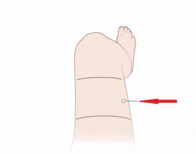 Как сделать укол в бедро самому себе - техника выполнения внутримышечной инъекции