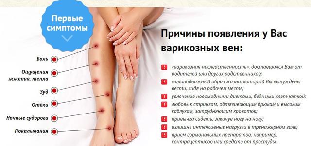 Варикоз у детей на ногах: фото и лечение