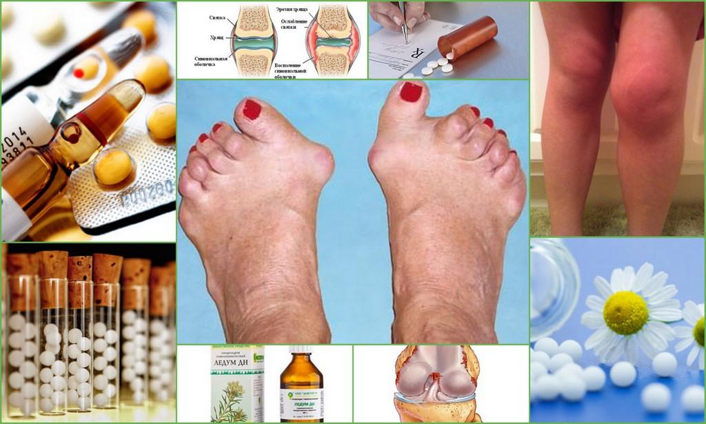 Гомеопатия при ревматоидном артрите