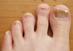 Недорогие и эффективные средства от грибка ногтей на ногах для взрослых: описание лекарств, цены