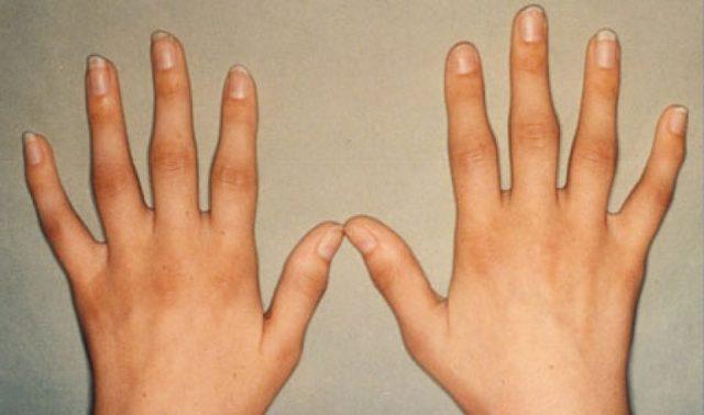 Ревматический артрит: причины, симптомы, лечение