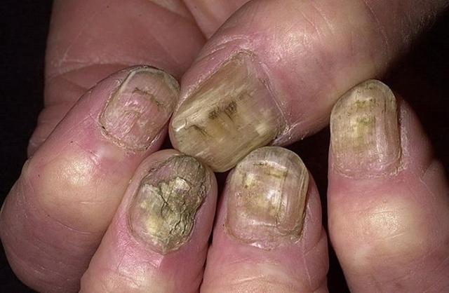 Фукорцин от грибка ногтей - описание и отзывы