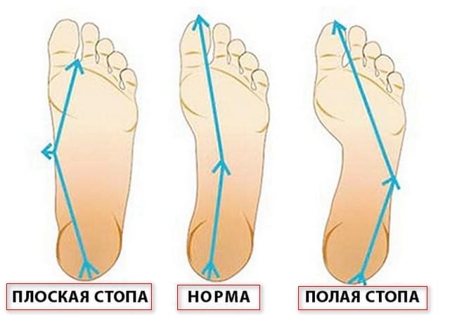 Упражнения для стопы при поперечном плоскостопии у взрослых - комплекс ЛФК