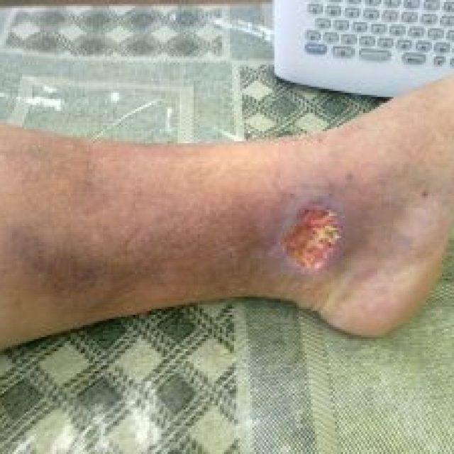 Обезболивающие препараты при трофических язвах нижних конечностей - чем снять боль
