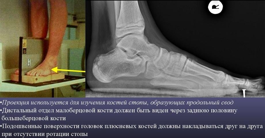 Рентген (рентгенография) стопы: как делают, фото снимков, норма, цена