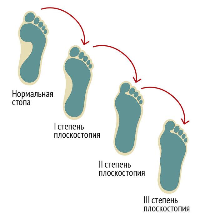 Плоскостопие: причины, симптомы и признаки, виды, методы лечения и профилактики