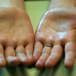 Гипергидроз стоп: лечение, фото, причины