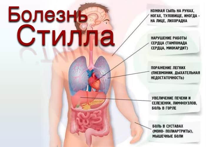 Болезнь Стилла у взрослых и детей: причины, симптомы, лечение