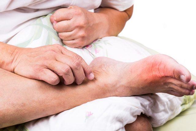 Подагра у мужчин: симптомы и признаки, лечение, фото, причины