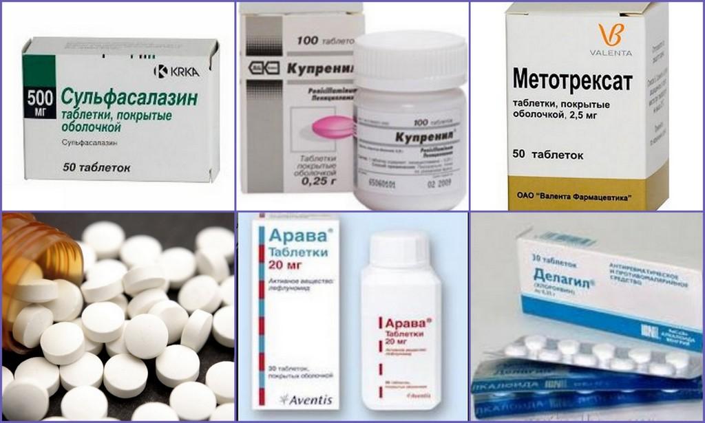 Лекарства от артрита суставов - лечение современными медикаментами, список эффективных препаратов