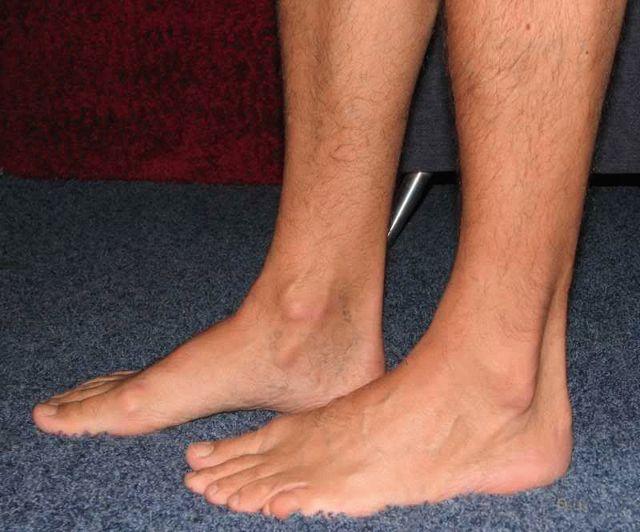 Плоскостопие 1 степени (продольное и поперечное): признаки, фото, лечение