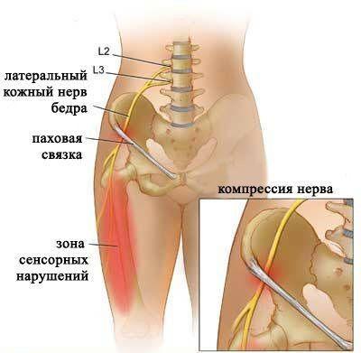 Немеет нога от бедра до ступни: причины и лечение