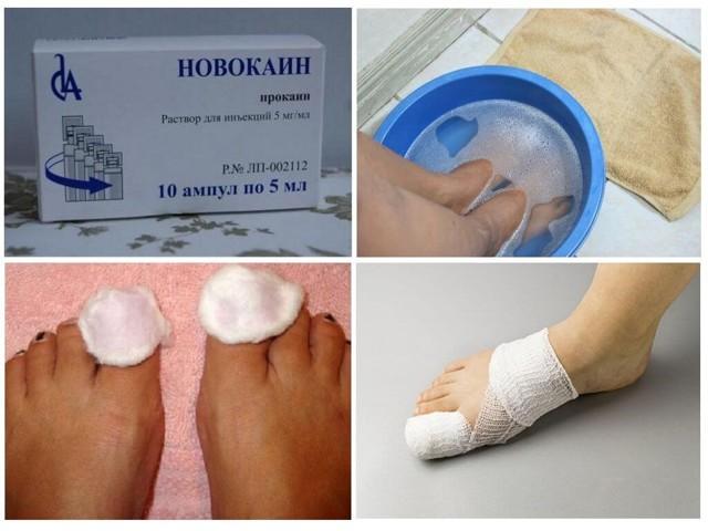 Новокаин от грибка ногтей - инструкция и отзывы