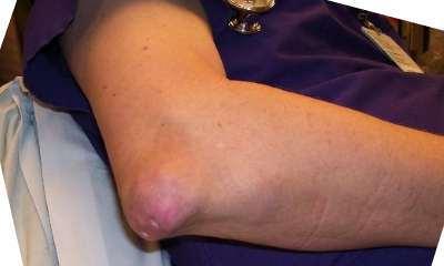 Подагра на ногах: фото, симптомы, лечение, профилактика