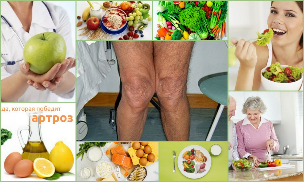 Диета при артрозе (гонартрозе) коленного сустава - меню на неделю, что нельзя есть