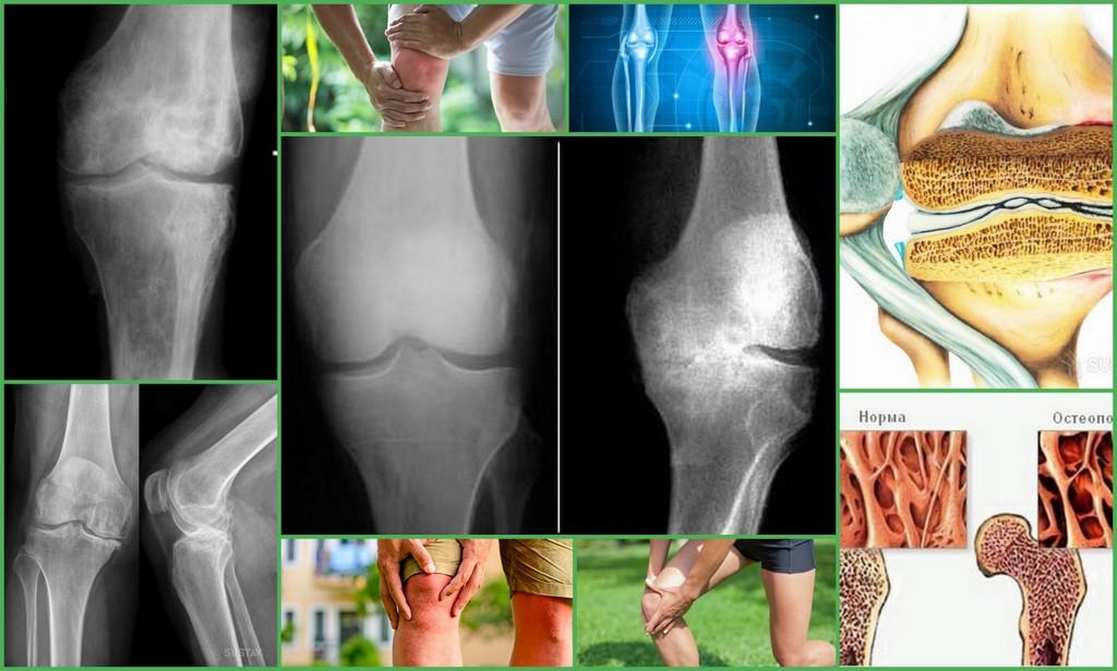 Остеопороз коленного сустава: симптомы и лечение, причины, диагностика