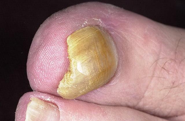 Мицелий грибка на ногтях и коже ног: признаки и лечение