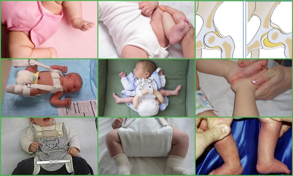 Доктор Комаровский: дисплазия тазобедренных суставов у детей