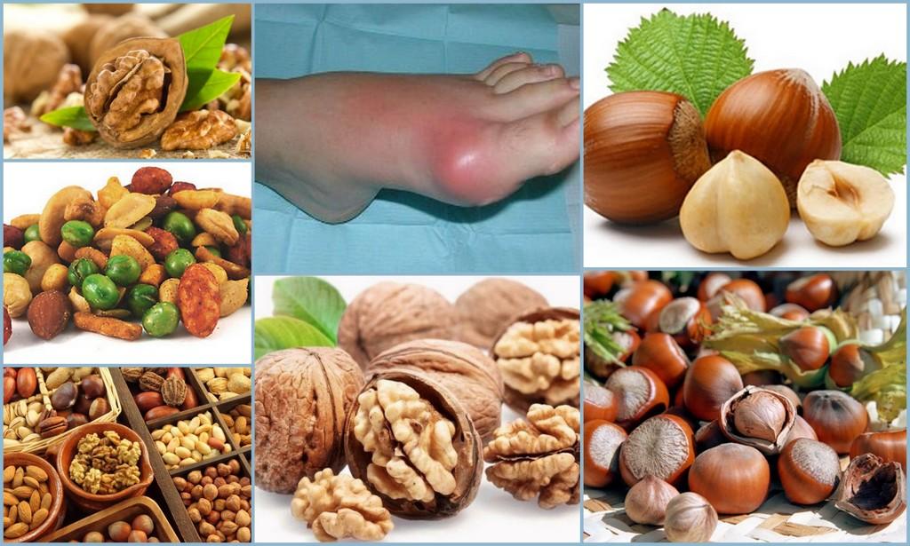 Орехи при подагре - можно ли есть грецкие орехи, арахис, миндаль, фундук