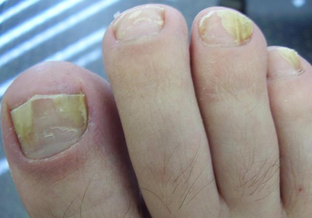 Йод от грибка ногтей на ногах - самые эффективные рецепты