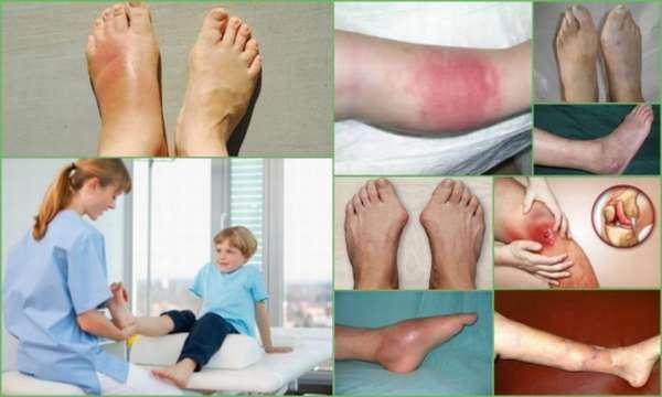 Остеомиелит у детей: причины, симптомы, лечение, последствия