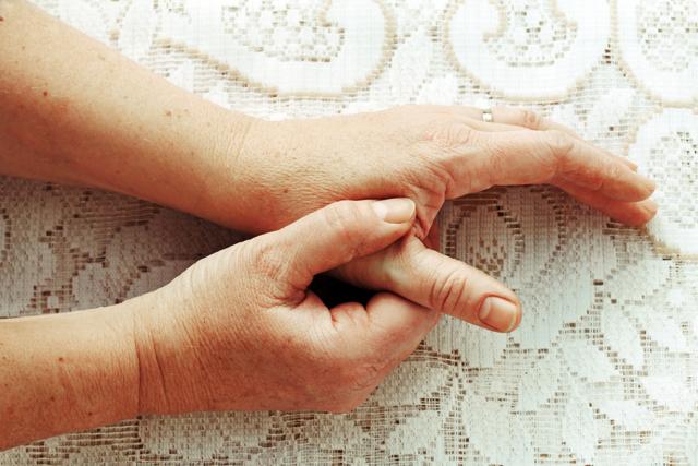 Псориатический артрит: симптомы, лечение, фото, диагностика