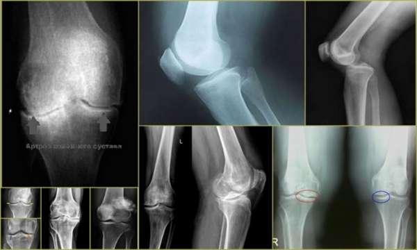 Рентген коленного сустава: что показывает снимок, фото, как проводится, цена