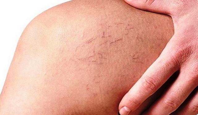 Сосудистая сетка на ногах: как избавиться от капиллярной сеточки, причины, фото, отзывы