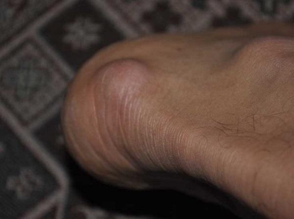 Корневая мозоль на ноге: профессиональные методы лечения, медикаментозные и народные средства